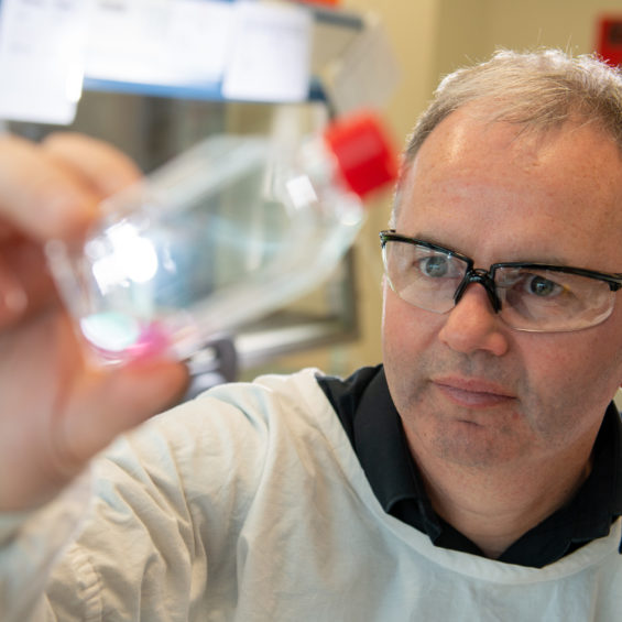 Male cancer researcher with safety glasses looking at cell culture in a bottle
